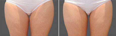 Before and After Photos: 5 Weeks After CoolSculpting Session (front view), Photos Courtesy of Dr.Tracy Mountford