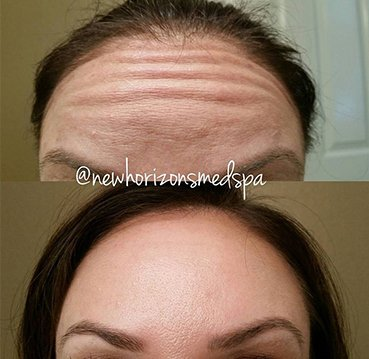 botox Before & After Photos 1