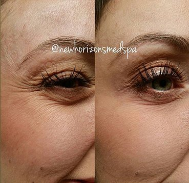 botox Before & After Photos 2