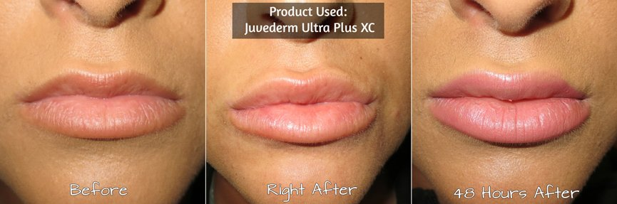 Juvéderm Before & After Photos 1