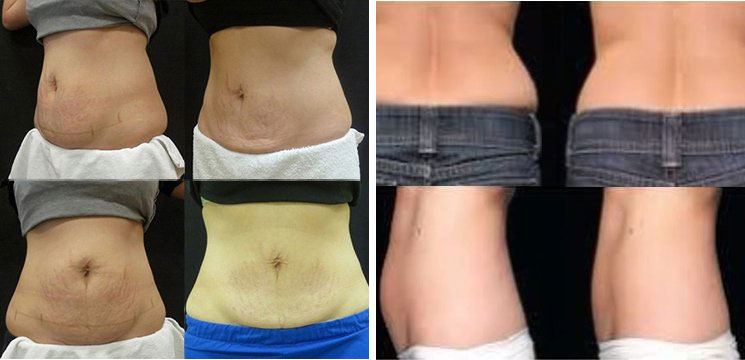 Before and After Treatment Photos: CoolSculpting Patients