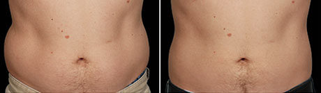 Before and After Photos: side view, 12 Weeks After Second CoolSculpting Session, Photos Courtesy of Amy Brodsky, MD